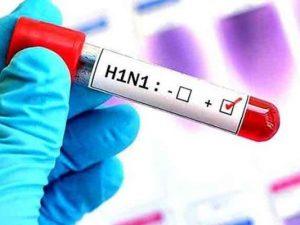 4º caso de H1N1 é confirmado em Não-Me-Toque